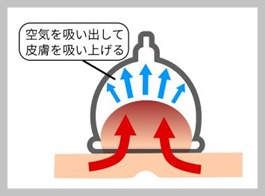 炎鵬 カッピング療法